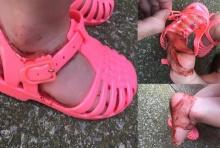 อุทาหรณ์เตือนใจพ่อแม่ ..กับผลลัพธ์การเลือกรองเท้ายางให้ลูกใส่!?