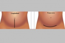 ผ่าคลอดแนวยาว ผ่าคลอดแนวขวาง ข้อดีข้อเสีย และวิธีดูแลแผลผ่าคลอด