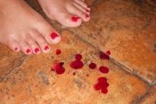 เลือดออกขณะตั้งครรภ์ อันตรายแค่ไหน?