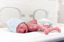 """ไขข้อข้องใจ """"ไขทารกแรกเกิด"""" มีดีหรือไม่"""