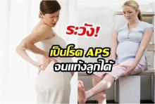ระวัง! แม่ท้องขาบวม เท้าบวม อาจเป็นโรค APS จนแท้งลูกได้