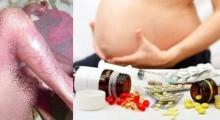 อุทาหรณ์เตือนใจคุณแม่ ทารกไม่มีผิวหนัง เพราะยาที่แม่กินตอนท้อง