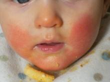 ทารกหัดกินอาหารทะเลก่อน 1 ขวบได้ไหม แล้วทำยังไงถ้าลูกแพ้