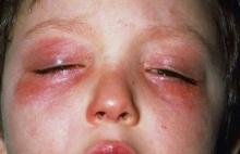 8 สาเหตุของโรคภูมิแพ้ขึ้นตาเด็ก วิธีสังเกตอาการ