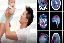 วิธีสังเกตอาการลูกเส้นเลือดสมองแตกในเด็ก อันตรายถึงชีวิต!