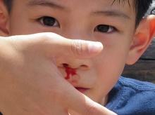 เมื่อลูกมีเลือดกำเดาไหล